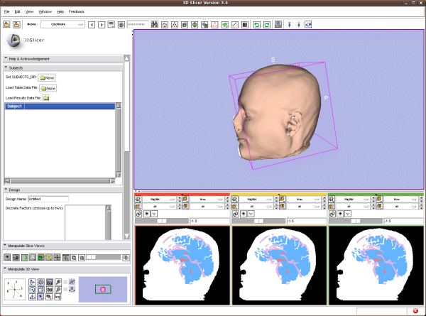 3D Slicer - platform for medical image informatics, image